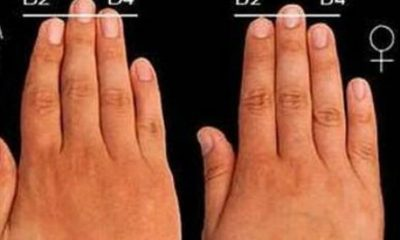 Los dedos de la mano pueden predecir la artrosis de rodilla